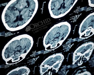 Meth Brain Damage Looks Like Self-Inflicted Schizophrenia